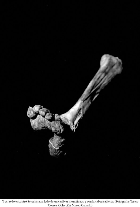 Pie de momia